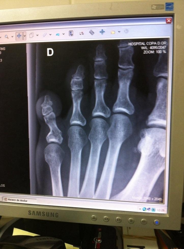 raio-x-dedo-minimo-quebrado